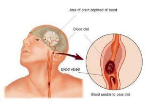 آیاقولنج باعث سکته می شود. قولنج گردن و شکستن آن بدانید